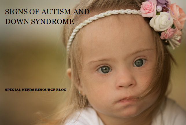 Down Syndrome Symptoms